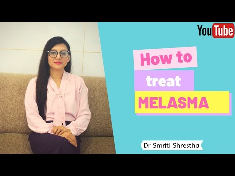 HOW TO TREAT MELASMA!!!