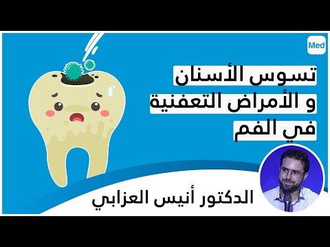 تسوّس الأسنان و الأمراض التّعفنية في الفم