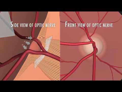 Дефект зрения близорукость физика