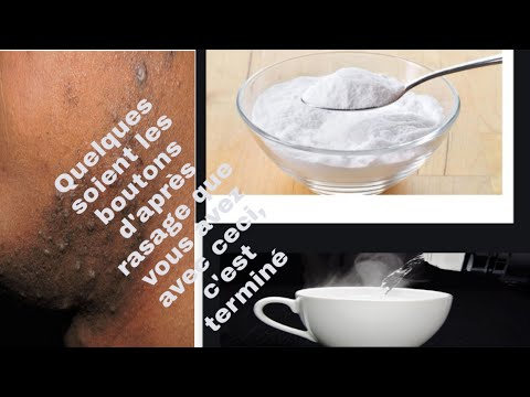 Moduri de infecție cu râme rotunde
