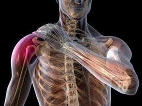 Video An Effective Self Treatment for Shoulder (Tendonitis, Bursitis, Impingement) : MORE ''ROM''