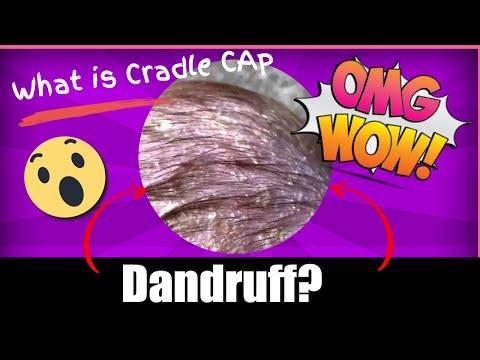 Quello che è possibile mangiare con il paziente con eczema