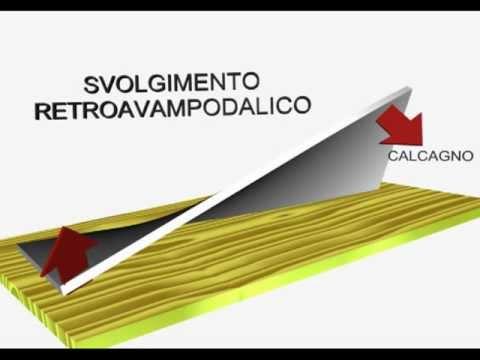 La procedura di risonanza magnetica della colonna cervicale