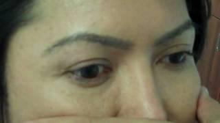 Dr. Jeffrey Epstein / Eyebrow and Eyelash Transplant / 1 yr