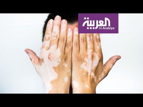 العرب اليوم - شاهد: نصيحة من طبيب للفنان رامي جمال