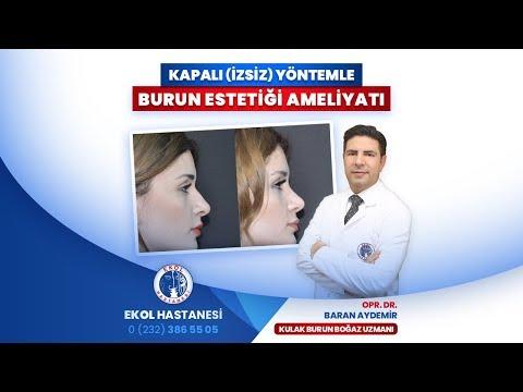 Kapalı (İzsiz) Yöntemle Burun Estetiği Ameliyatı - Opr. Dr. Baran Aydemir - İzmir Ekol Hastanesi