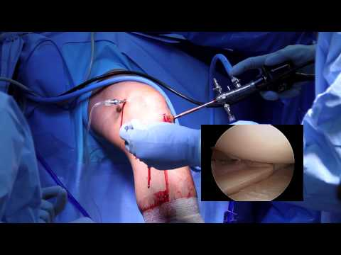 Arthroscopic Knee Surgery Meniscus Tear