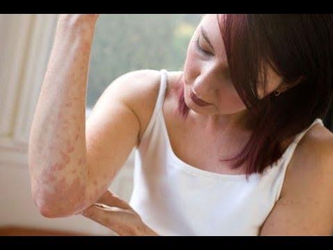 Que produtos podem ser usados quando eczema
