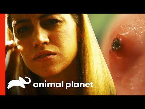 Giardia zwanger