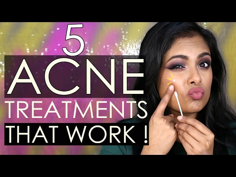Video 5 ACNE Treatments THAT WORK OVERNIGHT! Indian Skincare, Korean Skincare & DIY