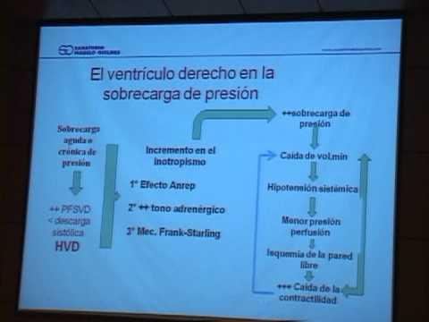 Plan de rehabilitación para la hipertensión