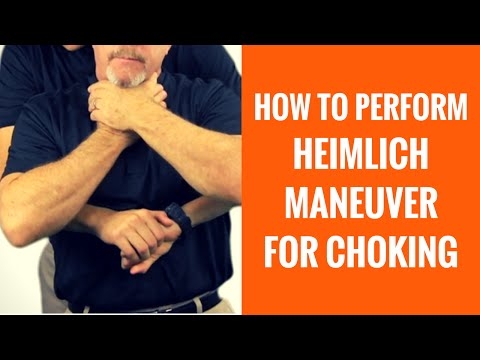How To Do The Heimlich Maneuver