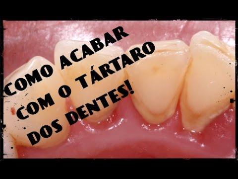 Como Clarear Os Dentes Na Hora Eliminar T Rtaro E Gengivite Dicas De