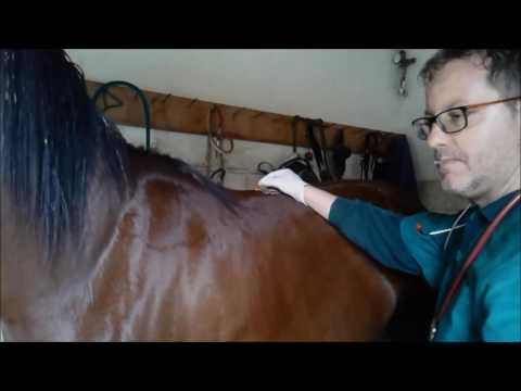 Come trattare linfiammazione delle articolazioni delle mani