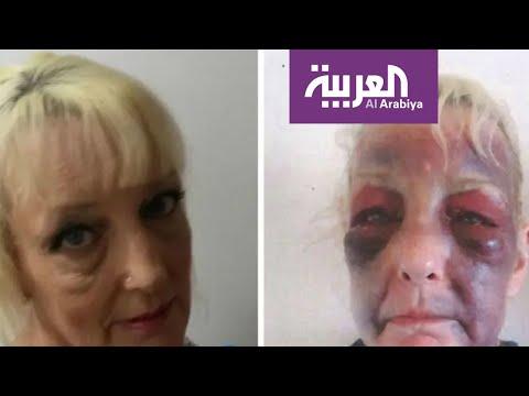 العرب اليوم - شاهد: صور صادمة لعجوز بريطانية تتعرض للضرب من صديقها