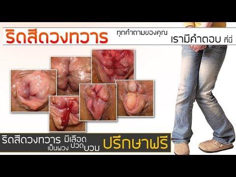 ลิ่มเลือดอุดตัน hemorrhoidal ภายนอกกว่าการรักษา