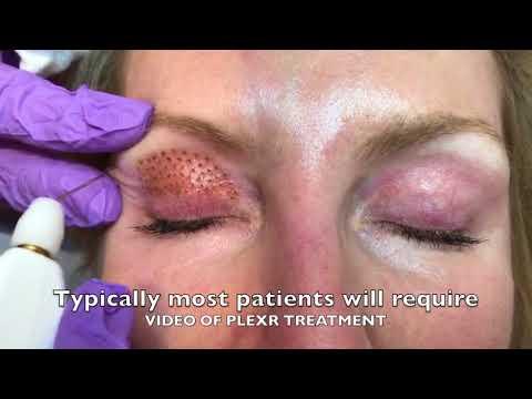 PLEXR PLASMA Eyelid Blepharoplasty