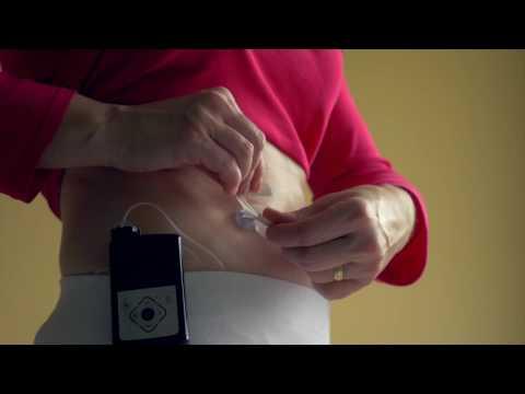 Kolik inzulínová pumpa