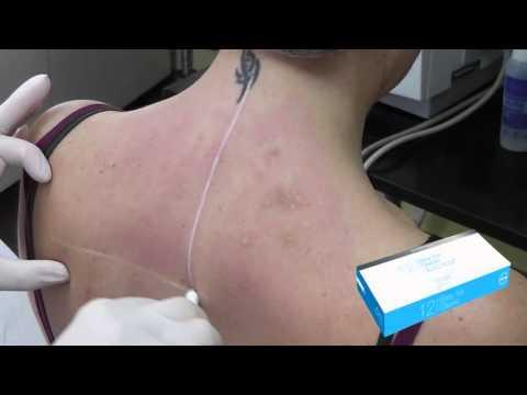 Tratamiento del sarcoma de cadera
