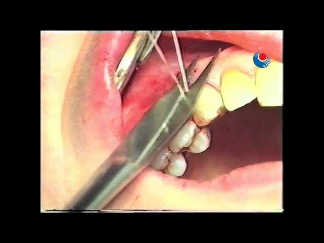Gingival Recession - Surgery tutorial 4