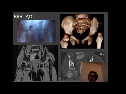 Лекция: «Роль МРТ при  патологии тазобедренного сустава – что должен знать рентгенолог»