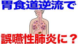 逆流によって誤嚥性肺炎になることもある?