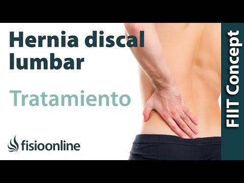 Síntomas columna torácica herniados