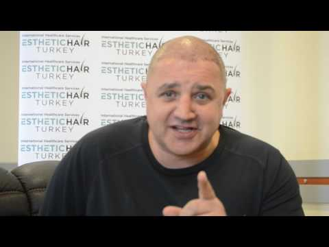 FUE Hair Transplant - Dear Scott Sharing His Expericience.