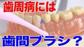 歯周病が心配なら歯間ブラシで!