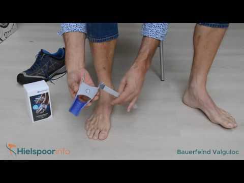 Guzki na stopie pod kciukiem