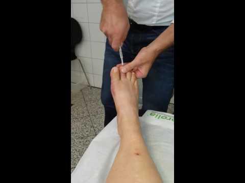 Der Ansatz auf dem Finger auf der Fußsohle