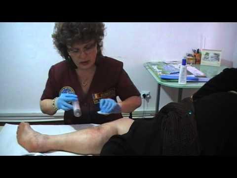 Tratamentul venelor varicoase cu un plasture