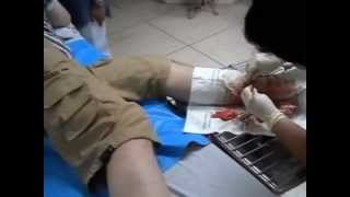 preview picture of video 'Operation in Samui Hospital   Koh Samui   Thailand'