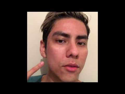 Come sgomberare la pelle di faccia le procedure cosmetiche