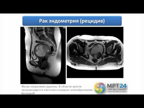 Лечение гепатита в самаре 2016