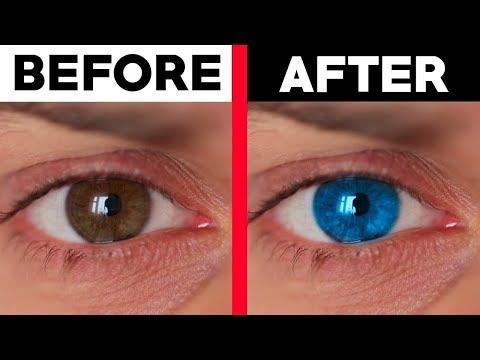 Miopie cu deficiență de vedere da