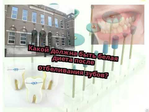 Какой должна быть белая диета после отбеливания зубов?