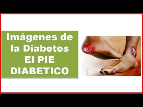 Los primeros síntomas de la diabetes en las mujeres después de los 30 años