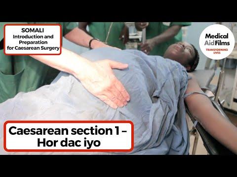 caesarean section 1 hor dac iyo
