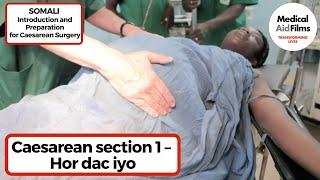 Download Video Caesarean section 1 – Hor dac iyo MP3 3GP MP4