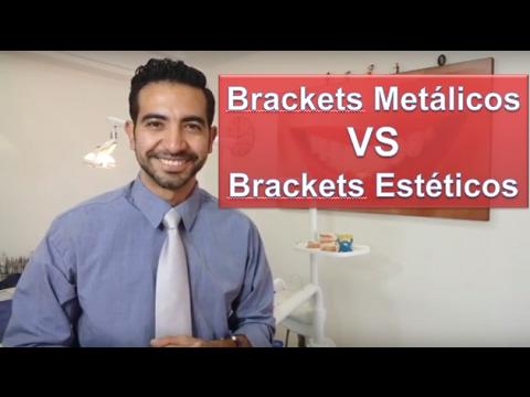 Brackets metálicos o  estéticos. ¿Cuál es mejor?