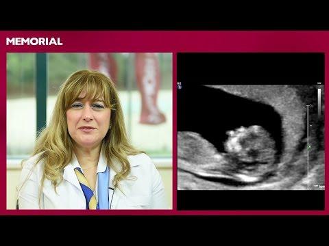 14 haftalık gebelik döneminde neler oluyor?