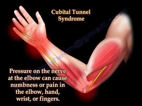 Download Cubital Tunnel Syndrome Ulnar Nerve Entrapment - Everything You Need To Know - Dr. Nabil Ebraheim Mp4 HD Video and MP3