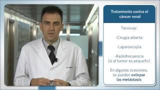 Últimos tratamientos para el cáncer de riñón - José Luis Pérez Gracia