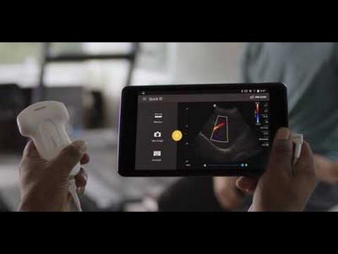 Introduction to hand-held ultrasound