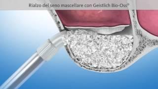 Rialzo del seno mascellare per implantologia all on 4