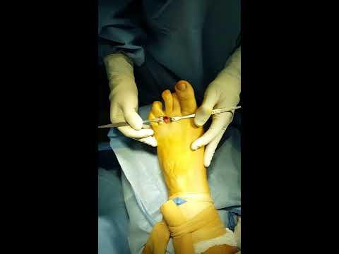 La deformazione acquisita di piede