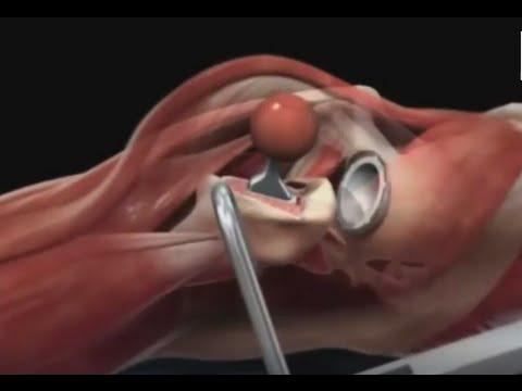 Эндопротезирование тазобедренного сустава: этапы операции, принципы и техника замены сустава
