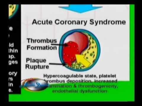 ปลิงสำหรับการรักษาเส้นเลือดขอดของกระดูกเชิงกรานขนาดเล็ก