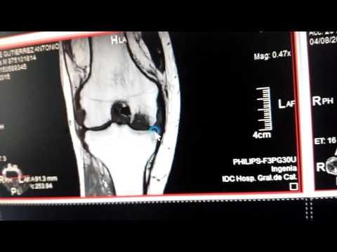 ¿Cuál es el tratamiento de las articulaciones por vibrosoundtouch